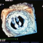 Ecocardiografia tridimensionale