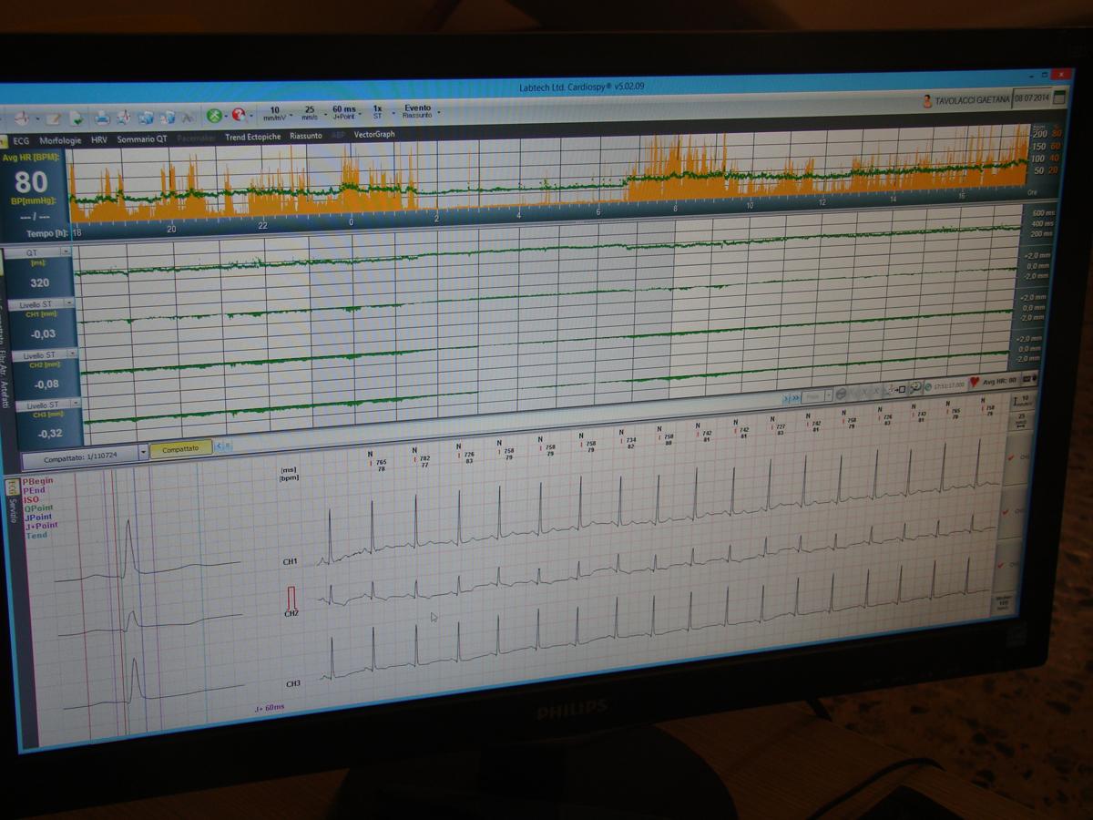 Elettrocardiogramma secondo Holter
